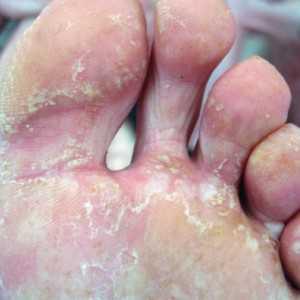 Лишаи это группа заболеваний кожи различного происхождения вирусного, грибкового и т