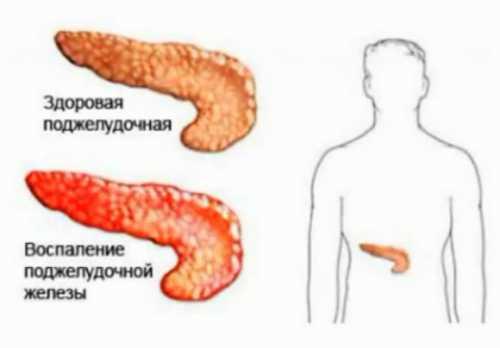 Воспаления поджелудочной железы иногда могут характеризоваться и весьма специфическими симптомами