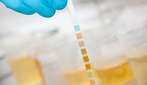 Кетоны повышены в моче у детей и при наличии простудных заболеваний или при нерациональном питании