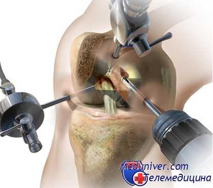 Что такое артроскопия коленного сустава Восстановление после артроскопии