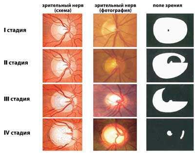 Заболевание зрительного нерва у человека