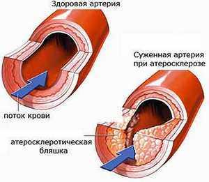 Народные средства от атеросклероза на начальной